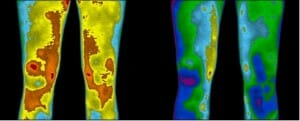 Thermographic image showing benefits of grounding before and after